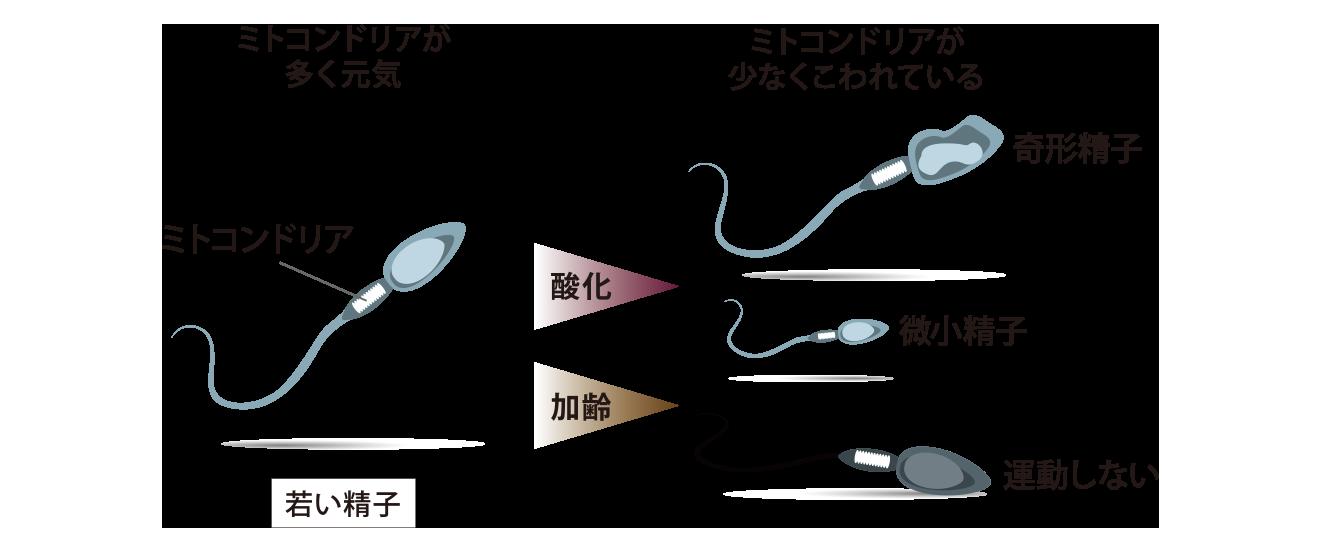精子の質が悪い例 奇形精子