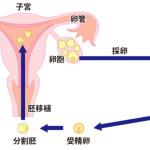 体外受精の採卵に伴う痛みの程度