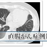 直腸がんが肺に転移するも3ヶ月で完全消失「APT分子免疫治療」