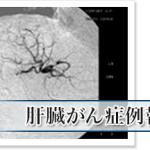 余命半年の肝臓がん末期を5ヶ月で改善した「APT分子免疫治療」