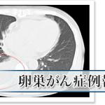 卵巣がん肺転移を約6ヶ月でがんの活動性低下「APT分子免疫治療」